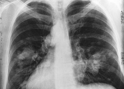 While vaccines have been developed to fight many types of cancers, one such promising vaccine is Lucanix, which is in clinical trials at the Cancer Center of Santa Barbara for treating lung cancer.