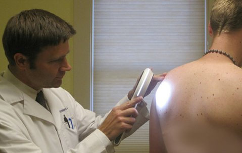 Dr. Llewellyn examines a local resident's back for suspicious moles or lesions which could signify the early stages of skin cancer.