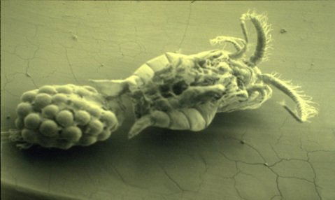 Microscopic view of a female cholera-carrying copepod.