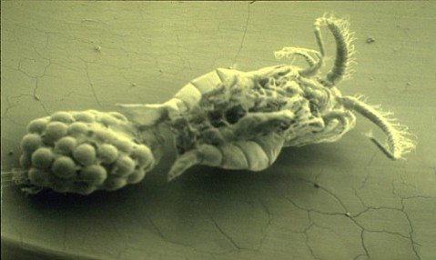 Microscopic view of a female cholera-carrying copepod.