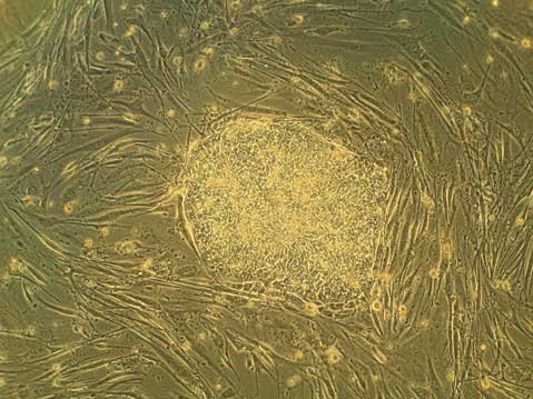 Human embryonic stem cells grow in colonies, or groups of stem cells, shown in the middle of this picture.  Grown with the stem cells are supportive fibroblastic cells, called feeder cells, which can be seen stretched out around the colony.