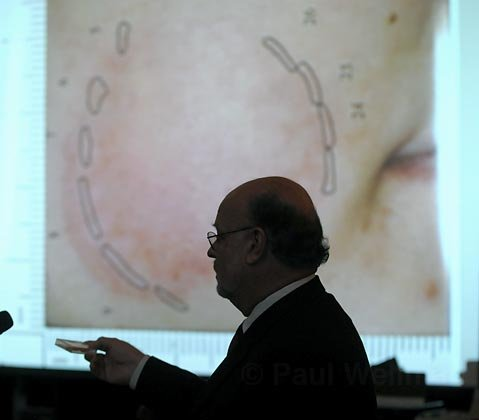 Defense Attorney Robert Sanger presents bite mark evidence during a re-trial motion.