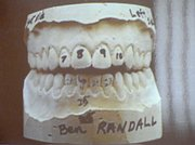 Casting of Ben Randall's teeth as shown in the courtroom