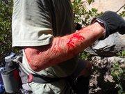 Manzanita stick wound