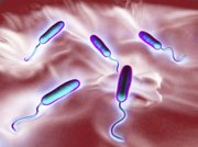 These Vibrio cholerae are bacteria that cause cholera, an infection of the small intestine transmitted to humans via contaminated food or waste.