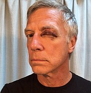 Richard Schiwietz was injured by a man yelling homophobic slurs.